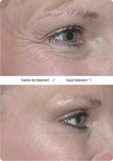 Tratament cu botox de la Quality Medical Clinic Srl