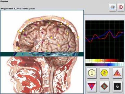 Aparat de biorezonanta Metatron 4025 de la Premier Clinic Srl